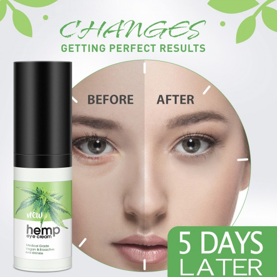 Buy Intensive Euhemp Eye Cream Moisturizer Anti Aging Eye Gel For